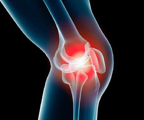 Quelles sont les causes de l'arthrite?